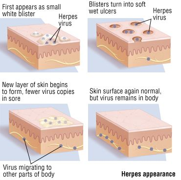 herpes virus - The Ultimate Herpes Protocol Coupons Discount Review