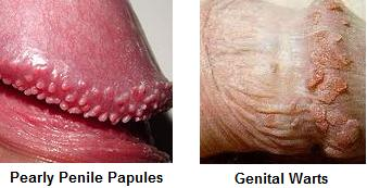 image4ppp - Pearly Penile Papules Removal Coupons Discount Review